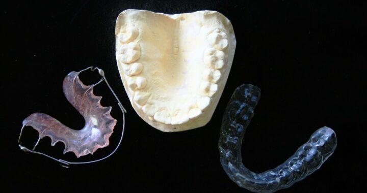 mouler un protège dent